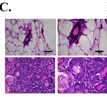 図1. SIRT3はミトコンドリアに位置するマウス腫瘍抑制因子である|サイヤジェン