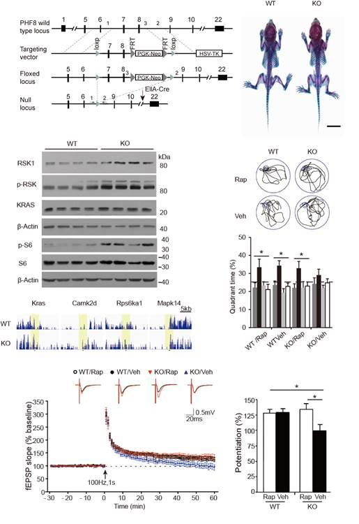Phf8基因在大脑认知功能中的潜在重要作用