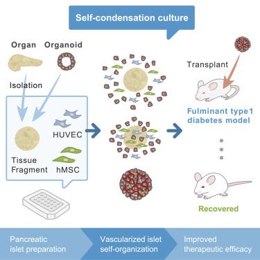 组织工程化人类胰岛研究新进展