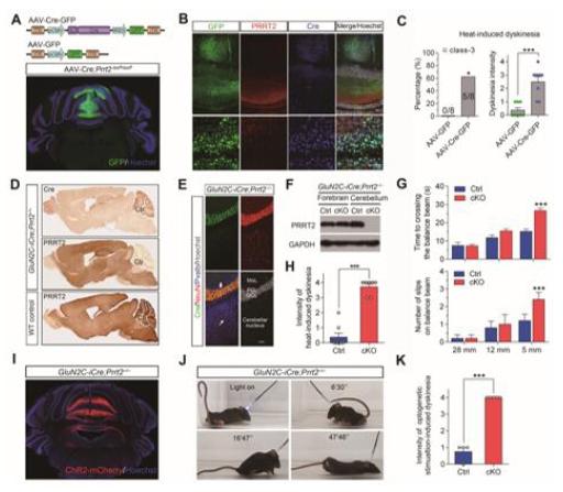 """""""图1.小脑是控制PRRT2相关运动障碍的关键脑区"""""""