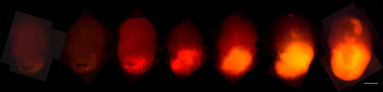 人脑类器官基因编辑助力致命脑癌治疗研究