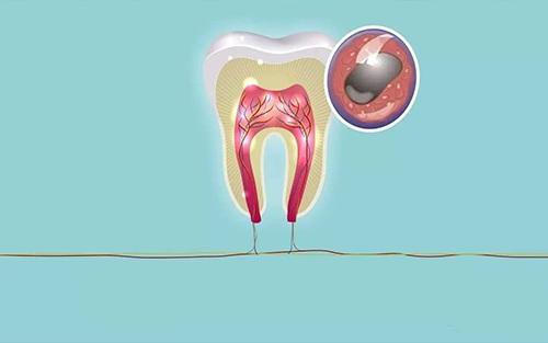 牙龈间充质干细胞有效促进伤口愈合