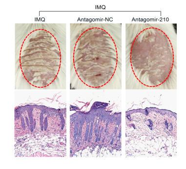 JCI:银屑病研究取得重大进展