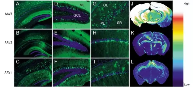 脑组织常见的血清型-1