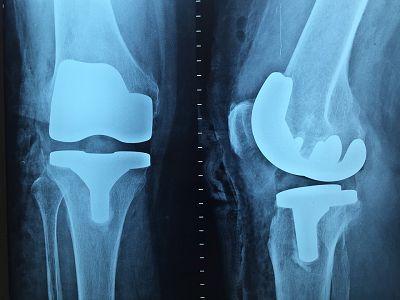 干细胞则具有修复软骨组织的能力