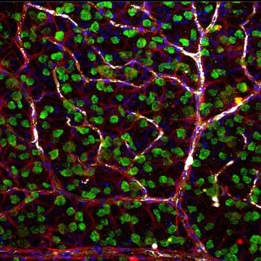 视网膜神经节细胞