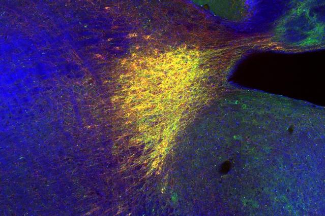 大脑选择性记忆新地方的方法