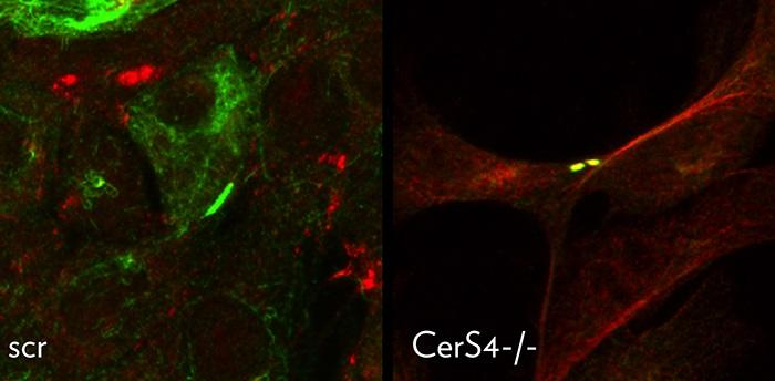 乳腺癌肿瘤细胞的初级纤毛内两个相邻细胞的TGF-β受体发生共定位(右图黄点);正常细胞TGF-β受体不发生聚集(左图)