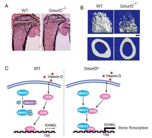 泛素连接酶 SMURF2 对骨骼系统的稳态维持作用