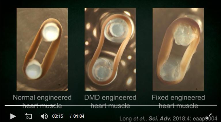 新的CRISPR-Cas9基因编辑技术改善了DMD患者的心肌细胞功能。