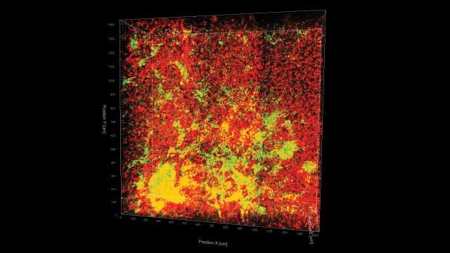 这种3D重建图像显示了利用CLARITY方法清除的小鼠脑内的星形胶质细胞(红色)和乳腺癌转移(黄色)
