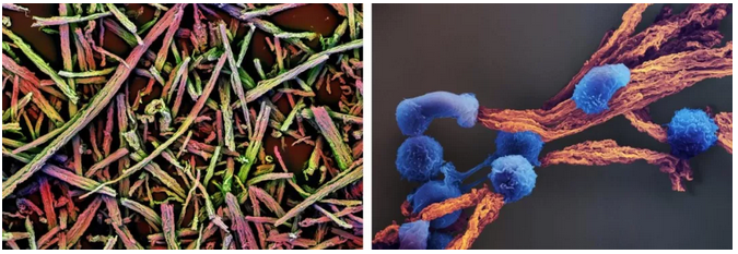 该支架的电镜结构(左),以及附着在支架上生长的 T 细胞(右图蓝色)