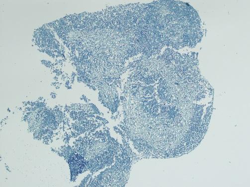 干细胞成软骨诱导分化