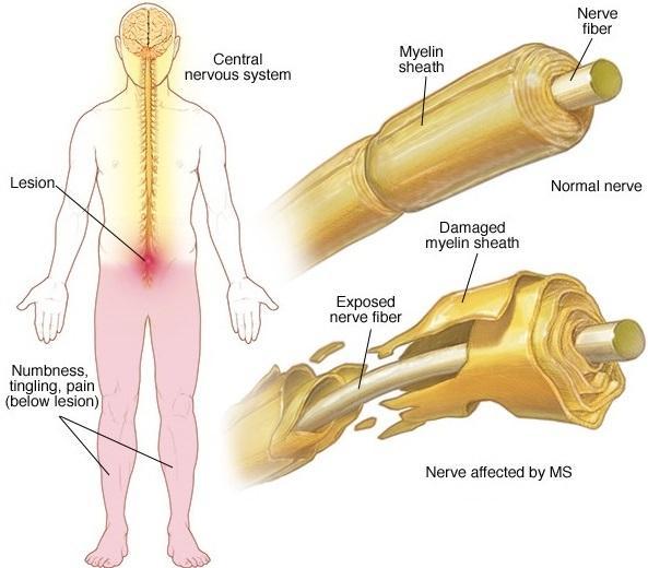 PET示踪剂:提高髓鞘损伤程度的鉴定准确性