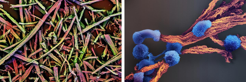 高效扩增原代T细胞的方法