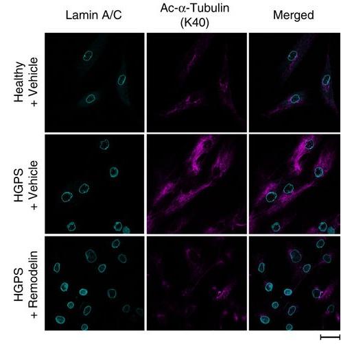 人类HGPS细胞双荧光染色观察