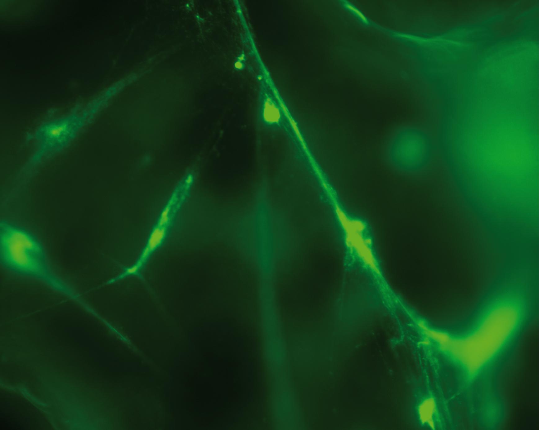 慢性淋巴细胞白血病B细胞遇CpG-C后分泌到培养基中的胞外DNA