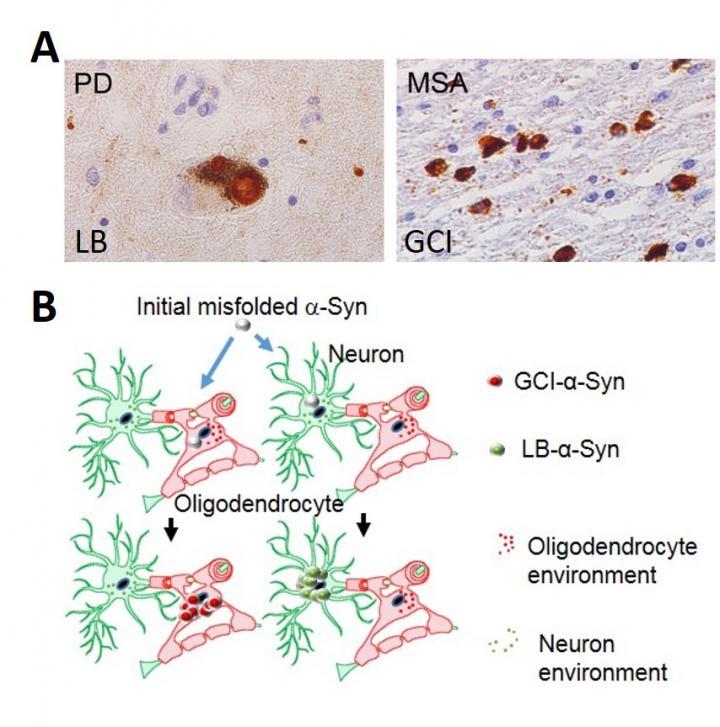 神经退行性疾病与蛋白品系差异的关系研究