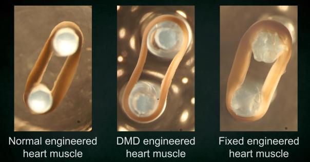 CRISPR/Cas:一次性纠正DMD患者数千种突变