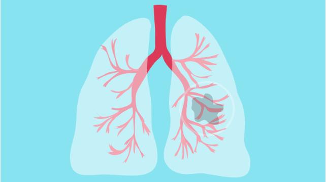 肺癌细胞的生长