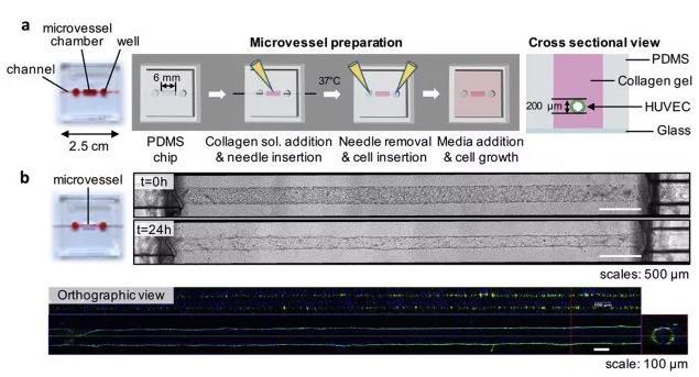 利用芯片制备体外人微血管