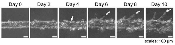随着时间的推移,可以用显微镜观察到血管的新生