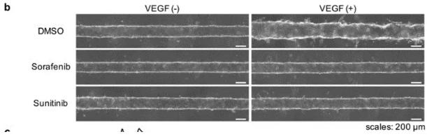 向芯片中添加抗肿瘤药物 sorafenib 或 sunitinib,观察到了血管新生的抑制现象。