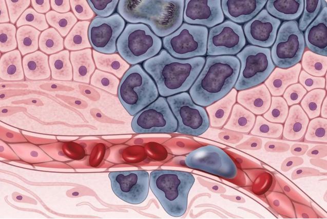 乳腺癌在转移