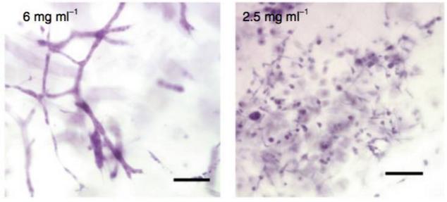 高密度的 3D 胶原基质环境(左)使得癌细胞产生类似血管形成的早期阶段