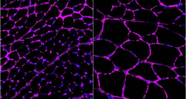 接受过治疗小鼠的肌肉纤维(右)明显大于对照组(左)