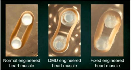 新基因疗法可阻止心脏跳动的致命疾病