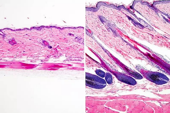 使用药物 UK-5099 局部治疗的小鼠皮肤显示出毛发生长(右),未处理的小鼠皮肤没有毛发生长(左)