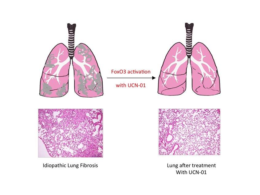 阻止肺纤维化进程的方法