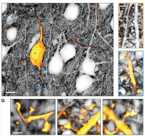 究人员使用新技术看到小鼠大脑细胞外空隙
