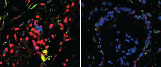 糖如何调控T细胞激活