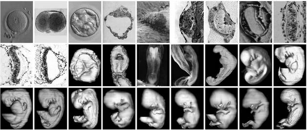 The Virtual Human Embryo 网站上提供的显微照片